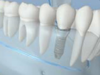 dental-implants-mini