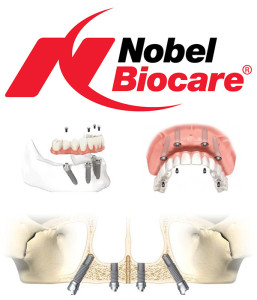 Nobel Biocare dental implants